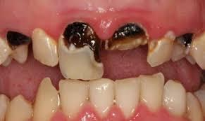 Kerusakan Gigi Yang Di Alami Manusia
