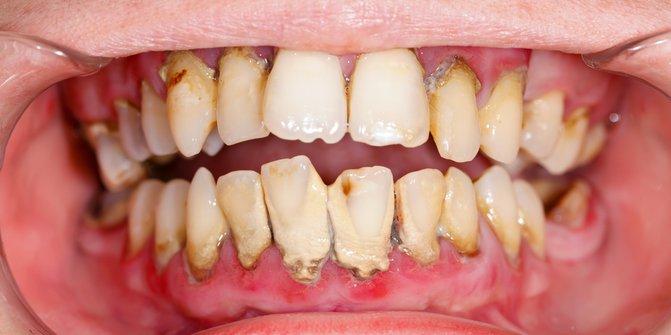 Kerusakan Gigi Yang Di Alami Manusia11